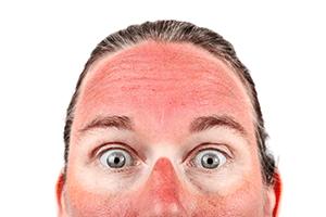 Woman sunburnt